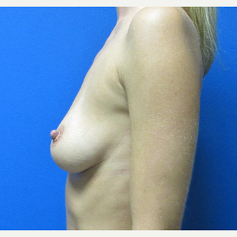 33 year old woman 500cc breast implants before 3696483