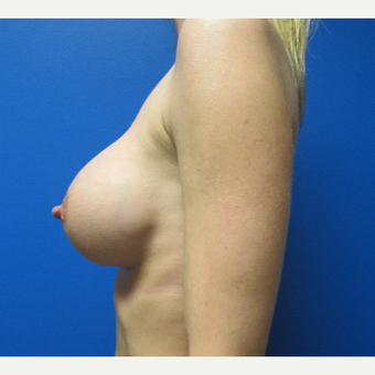 33 year old woman 500cc breast implants after 3696483