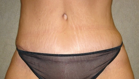 C.L.A.S.S ® Tummy Tuck after 926879