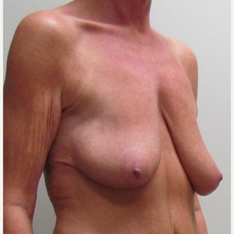 Breast Lift for this 48 Year Old Woman before 3042815