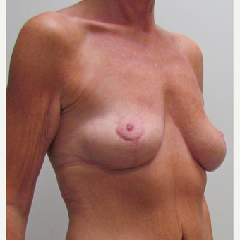 Breast Lift for this 48 Year Old Woman after 3042815