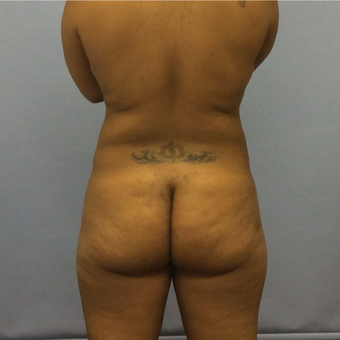 35-44 year old woman treated with Brazilian Butt Lift before 3265862