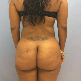 35-44 year old woman treated with Brazilian Butt Lift after 3265862