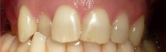 35-44 year old woman treated with Braces before 3031517