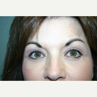 52 year old woman treated with Eyelid Surgery after 3442572