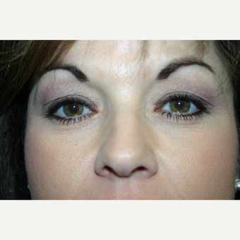 52 year old woman treated with Eyelid Surgery before 3442572