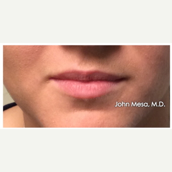 25-34 year old woman treated with Lip Augmentation before 3058429