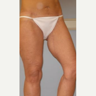 45-54 year old woman treated with Thigh Lift after 3280741