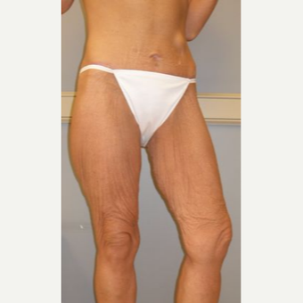 45-54 year old woman treated with Thigh Lift before 3280741