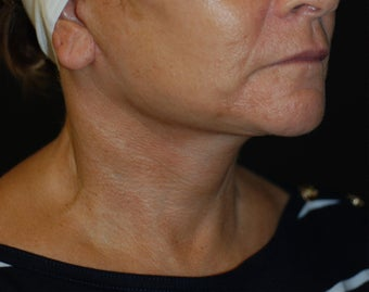 Necklift with facelift 1041674
