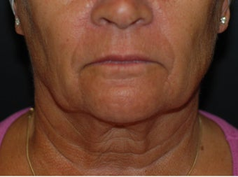 Necklift with facelift before 1041674
