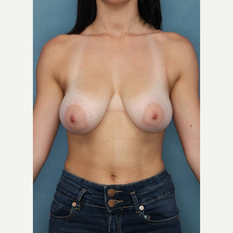 18-24 year old woman treated with Breast Reduction before 3489570