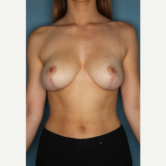 18-24 year old woman treated with Breast Reduction after 3489570