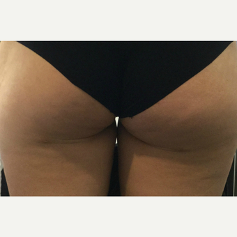 18-24 year old woman treated with Non-Surgical RF Cellulite Treatment after 3724622