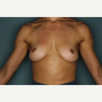 25-34 year old woman treated with Breast Augmentation before 3289177