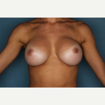 25-34 year old woman treated with Breast Augmentation after 3289177
