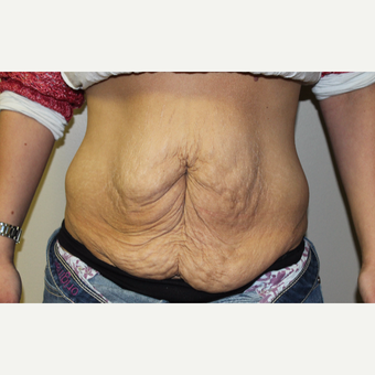 35-44 year old woman treated with Tummy Tuck before 3225077