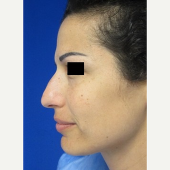 Rhinoplasty before 2994553