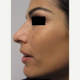 Rhinoplasty after 2994553