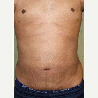 Liposuction Revision after 2132872