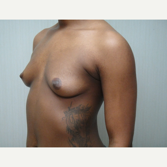 25-34 year old woman treated with Breast Augmentation before 3823388