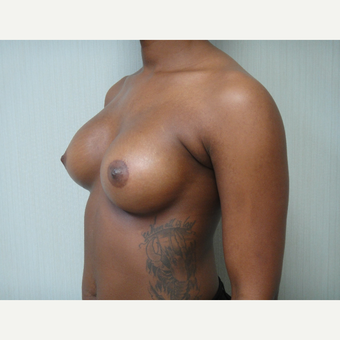 25-34 year old woman treated with Breast Augmentation after 3823388