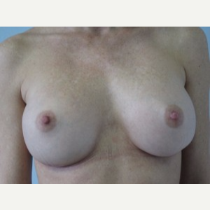 Breast Implant Revision after 3168545