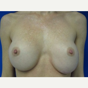 Breast Implant Revision before 3168545