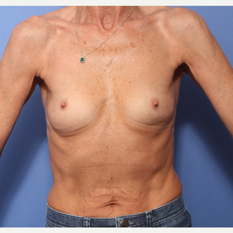 45-54 year old woman treated with Breast Augmentation before 3505839