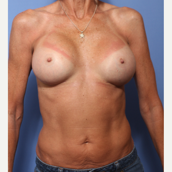 45-54 year old woman treated with Breast Augmentation after 3505839