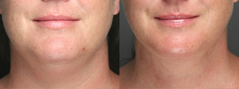 SmartLipo Liposuction of Neck before 275620