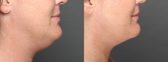 SmartLipo Liposuction of Neck after 275620