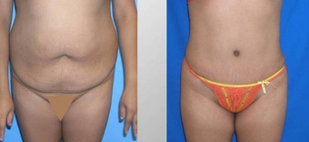 Tummy Tuck (Abdominoplasty) before 258052
