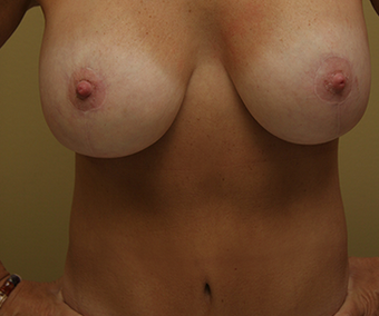 Mommy Makeover:  included a breast lift with implants and a tummy tuck  after 1340665