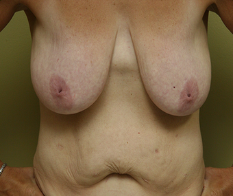 Mommy Makeover:  included a breast lift with implants and a tummy tuck  before 1340665