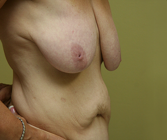 Mommy Makeover:  included a breast lift with implants and a tummy tuck  1340665
