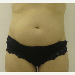 35-44 year old woman treated with Liposonix before 2093630