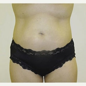 35-44 year old woman treated with Liposonix after 2093630