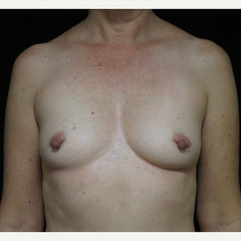 45-54 y/o woman treated with Breast Reconstruction using Sientra Shaped 370cc Gummy Bear Implants