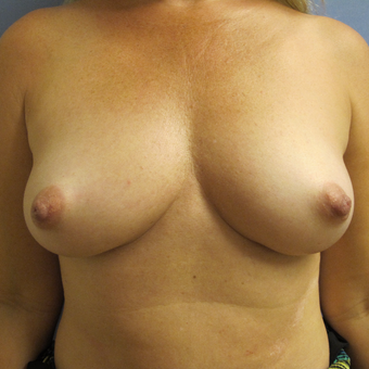 45-54 year old woman treated with Breast Augmentation before 3340334
