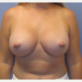 45-54 year old woman treated with Breast Augmentation after 3340334