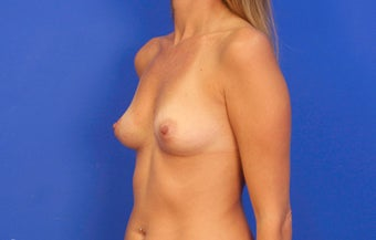 25-34 year old woman treated with Breast Implants before 3499763