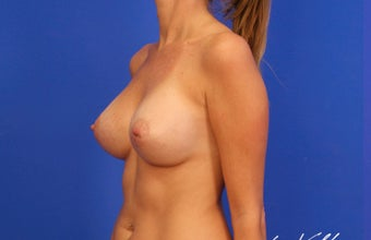 25-34 year old woman treated with Breast Implants after 3499763