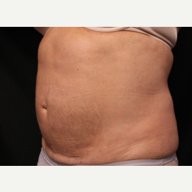 55-64 year old woman treated with CoolSculpting after 2003872