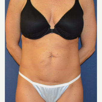 25-34 year old woman treated with Tummy Tuck before 3093630