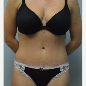 25-34 year old woman treated with Tummy Tuck after 3093630