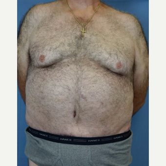 55-64 year old man treated with Body Lift after 3605353