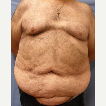 55-64 year old man treated with Body Lift before 3605353