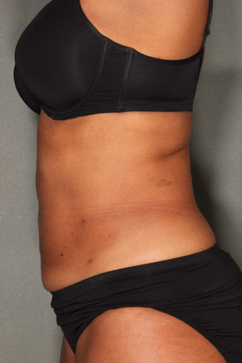 54 Year Old Female Treated for UnWanted Fat With SmartLipo and Vaser Laser High Deffinition  after 858933