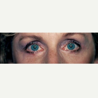 45-54 year old woman treated with Eye Bags Treatment after 2009939